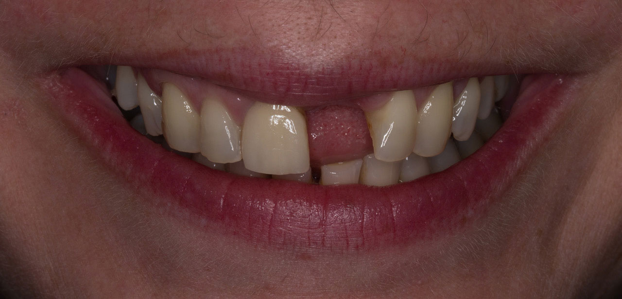 Before Repairing Advanced Acid Erosion and Missing Tooth